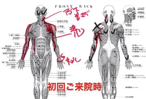 肩が痛み-寝れない-夜中に目が覚める-治療方法4