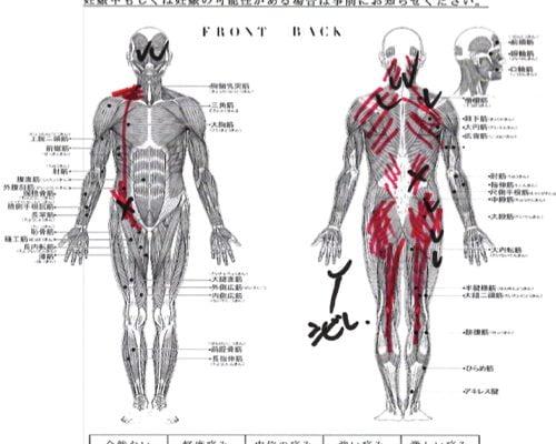 腰痛-ぎっくり腰の治療方法-広島で有名-腰痛専門整体院4