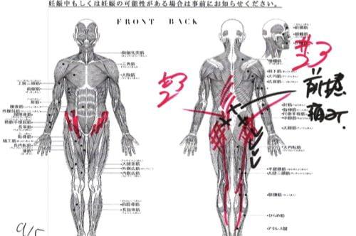 腰痛-椎間板ヘルニアの治療方法-広島で有名-腰痛専門整体院2