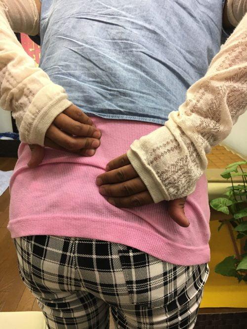 腰痛-椎間板ヘルニアの治療方法-広島で有名-腰痛専門整体院3
