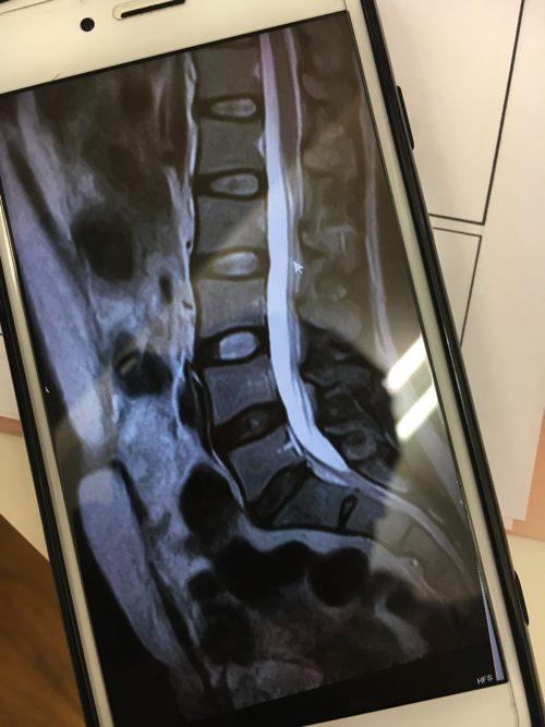 腰痛-椎間板ヘルニアの治療方法-広島で有名-腰痛専門整体院5