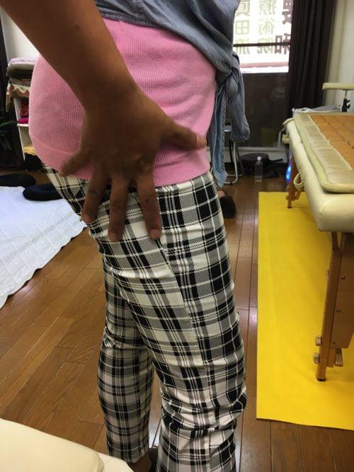 腰痛-椎間板ヘルニアの治療方法-広島で有名-腰痛専門整体院6