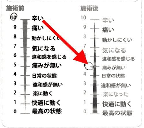 腰痛-椎間板ヘルニアの治療方法-広島で有名-腰痛専門整体院7