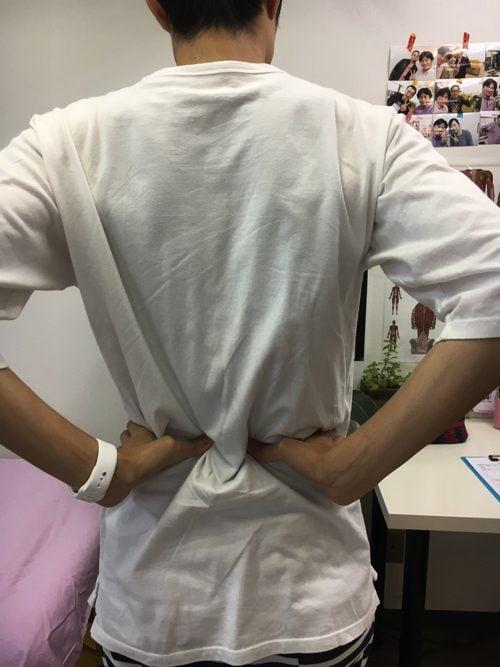 頭痛外来-偏頭痛と腰痛の治療-偏頭痛解消に効くヘッドマッサージ-広島1
