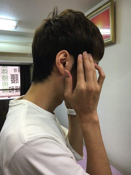 頭痛外来-偏頭痛と腰痛の治療-偏頭痛解消に効くヘッドマッサージ-広島2