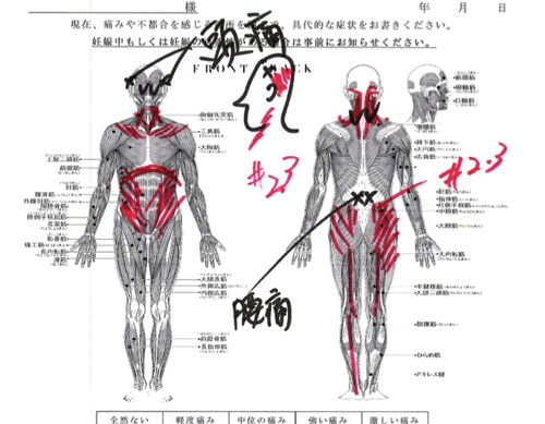 頭痛外来-偏頭痛と腰痛の治療-頭痛解消に効くヘッドマッサージ-広島1