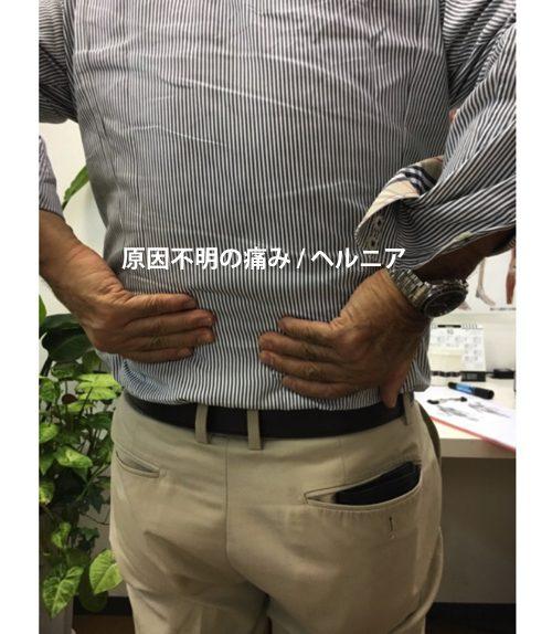 ヘルニアの治療と治し方-腰の痛み-脚の痺れ-膝に力が入らないー歩けない原因
