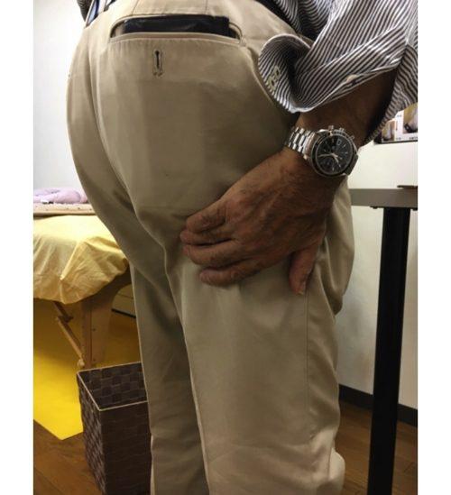 ヘルニアの治療と治し方-腰の痛み-脚の痺れ-膝に力が入らないー歩けない-原因3