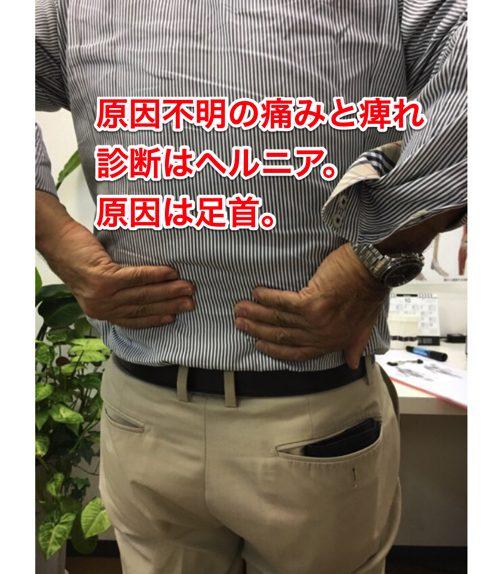 ヘルニアの治療と治し方-腰の痛み-脚の痺れ-膝に力が入らないー歩けない-原因9