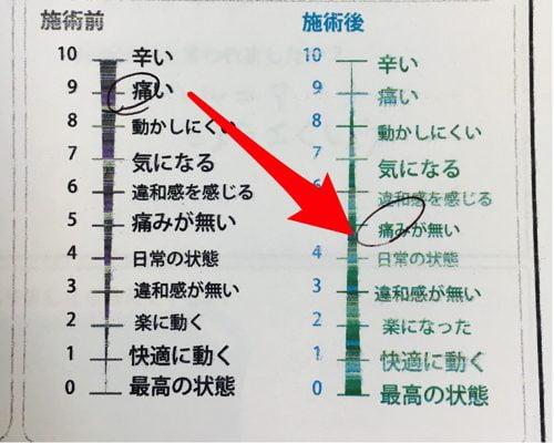 咳からくる腰痛の原因と治療方法-広島で腰痛専門の整体院の実例記録9