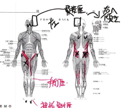 ヘルニアと側弯症で腰が痛く身体が傾く原因と治療方法