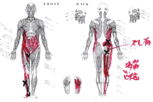 脊柱管狭窄症の原因と治療方法_広島の腰痛専門士の治った例