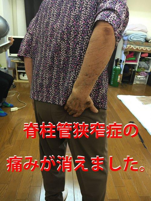 脊柱管狭窄症の治療_広島_名医