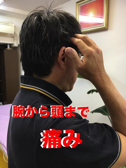 広島で偏頭痛の治療_肩から首と頭が痛い_薬を使わず治すヘッドマッサージ_ドライヘッドスパ