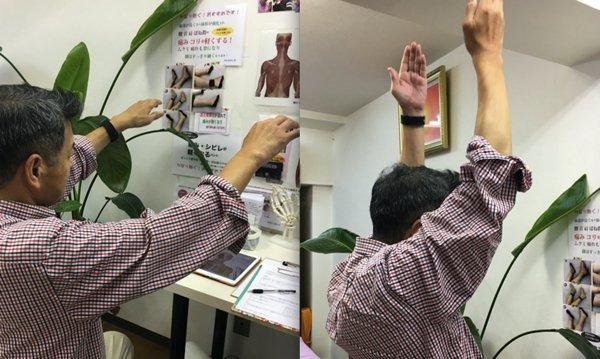 広島の整体院_五十肩の治療例