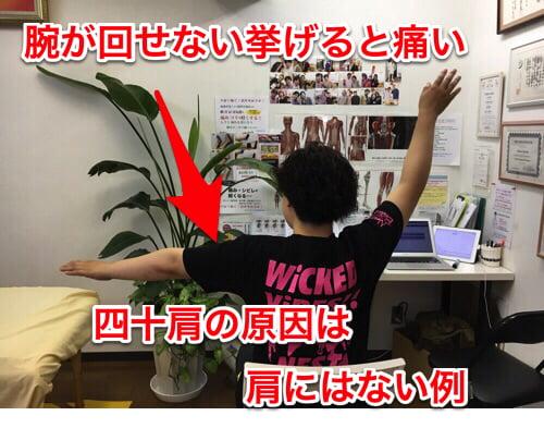 治らない四十肩の本当の原因と治療方法-広島で四十肩を治す専門技術の整体院