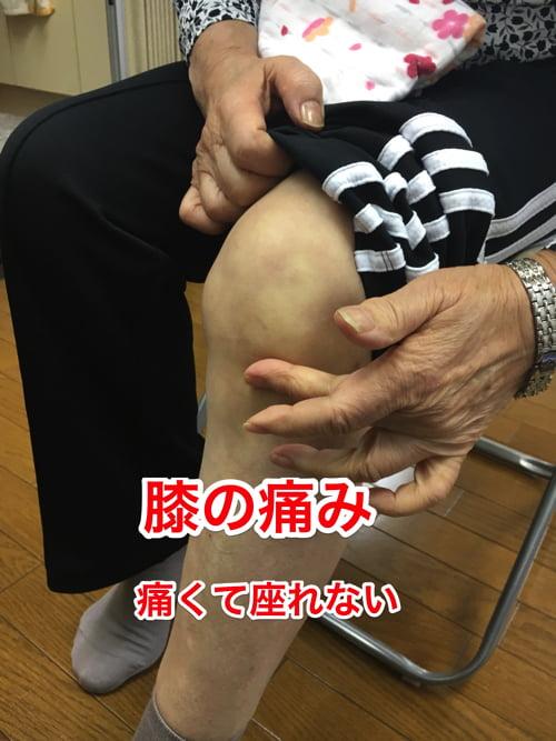 広島-膝の痛みを治す_変形性膝関節症の治療改善例