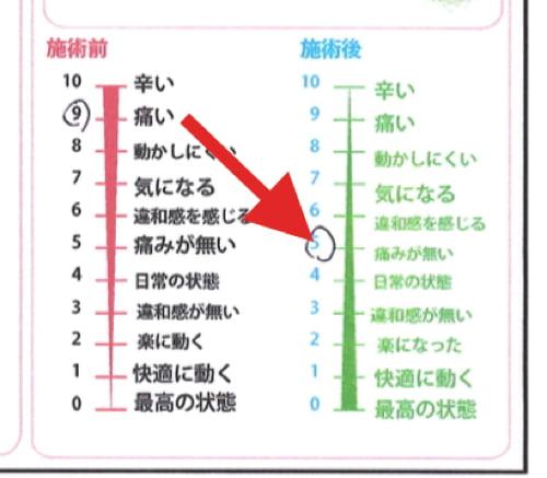 広島-整体院_原因付目の腰と太腿の痛みの治療方法