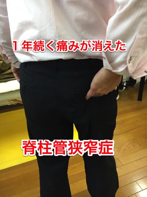 広島_なかなか治らない脊柱管狭窄症の治療例_原因解説