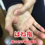 ばね指の原因と治療方法_ばね指の治し方解説_整体広島眞田流の改善例1