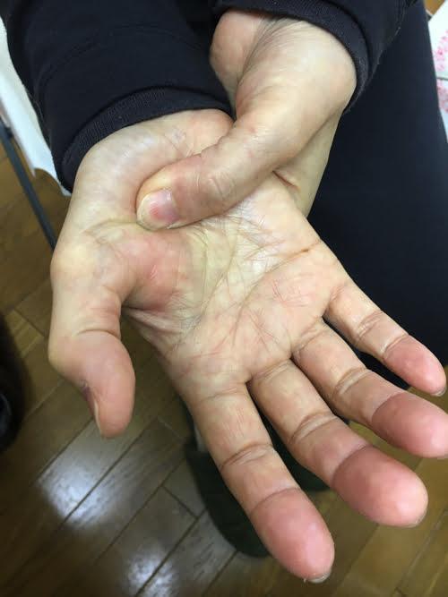 ばね指の原因と治療方法_ばね指の治し方解説_整体広島眞田流の改善例4