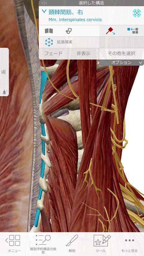 広島で偏頭痛や緊張型頭痛の痛み治療のヘッドマッサージ1