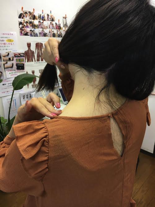 広島_偏頭痛や緊張型頭痛の痛み治療のヘッドマッサージ10