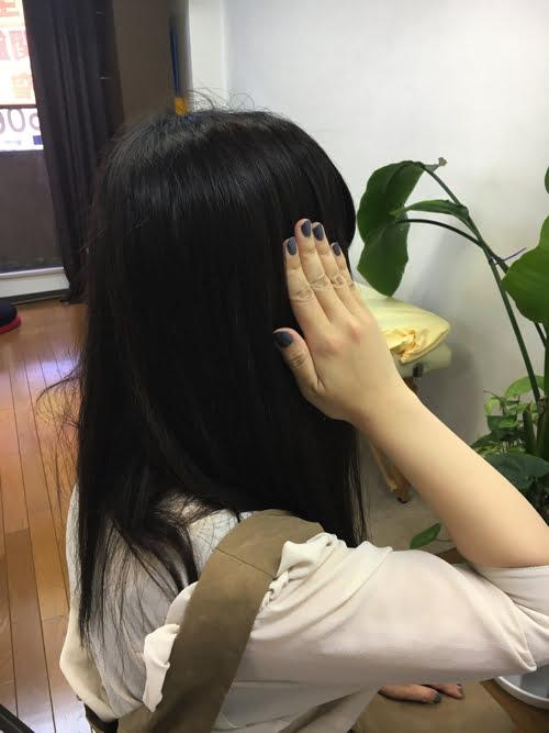 広島_偏頭痛や緊張型頭痛の痛み治療のヘッドマッサージ4