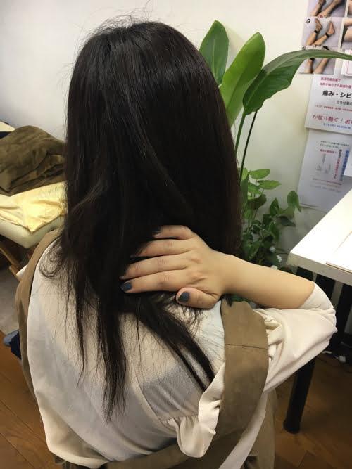広島_偏頭痛や緊張型頭痛の痛み治療のヘッドマッサージ5