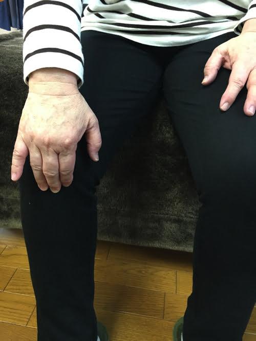 広島_膝の痛みの治療で有名な整体院の記録5