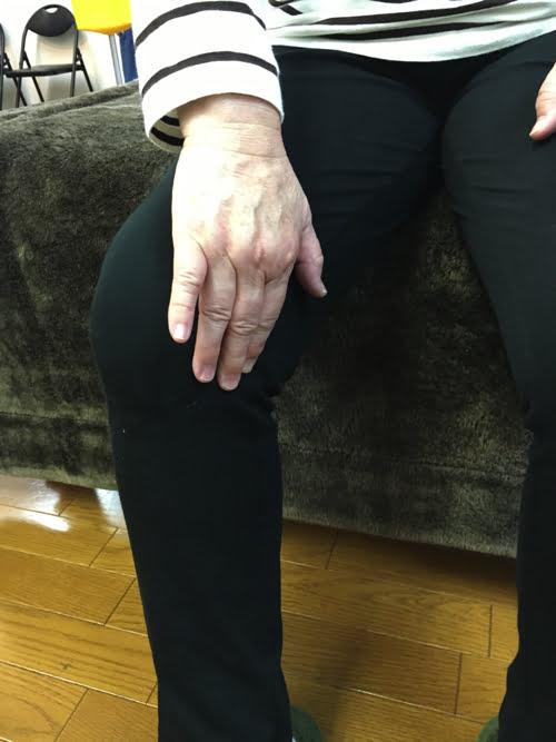 広島_膝の痛みの治療で有名な整体院の記録6