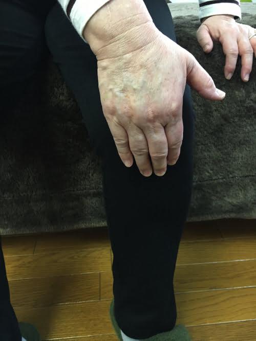 広島_膝の痛みの治療で有名な整体院の記録7