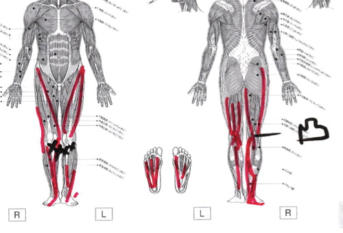 広島_膝の痛みの治療で有名な整体院の記録8