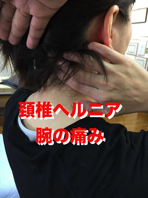 広島_頚椎ヘルニア治療-首の痛みや腕の痛みの原因と治療方法1.bk