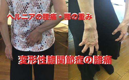 ヘルニアの腰痛治療と変形性膝関節症の膝痛治療_改善例解説1