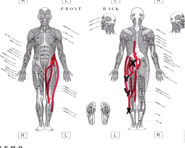 歩くと痛みが増す腰部脊柱管狭窄症と間欠性跛行の原因と治療方法の実例11