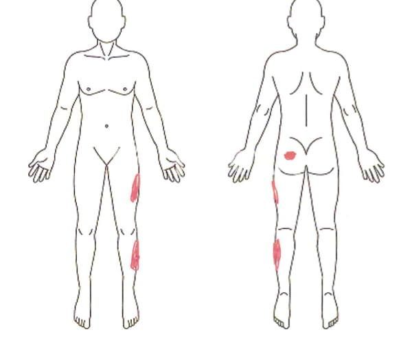 歩くと痛みが増す腰部脊柱管狭窄症と間欠性跛行の原因と治療方法の実例2