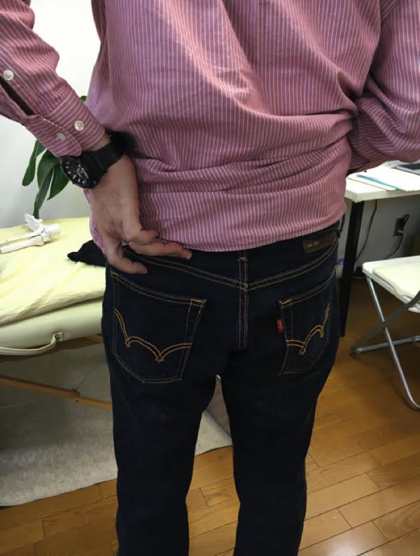 歩くと痛みが増す腰部脊柱管狭窄症と間欠性跛行の原因と治療方法の実例3
