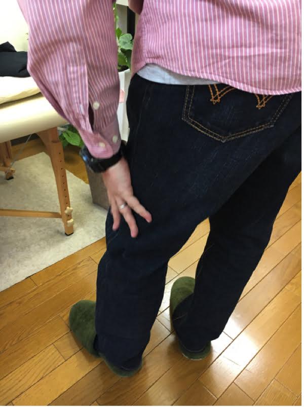 歩くと痛みが増す腰部脊柱管狭窄症と間欠性跛行の原因と治療方法の実例4
