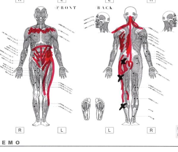 歩くと痛みが増す腰部脊柱管狭窄症と間欠性跛行の原因と治療方法の実例9