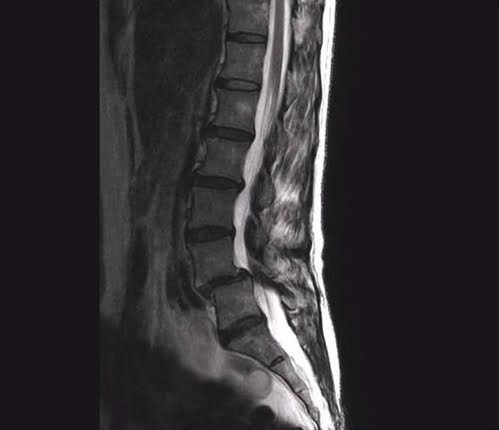 すべり症-坐骨神経痛の治療で痛みが消えた実例1すべり症-坐骨神経痛の治療で痛みが消えた実例1