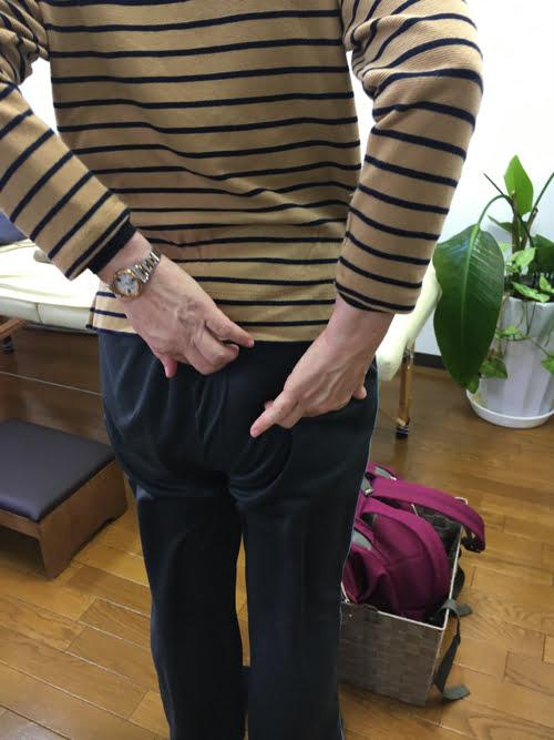 5腰椎すべり症-腰椎ヘルニア-脊椎管狭窄症-右臀部の痛みと足のしびれの治療