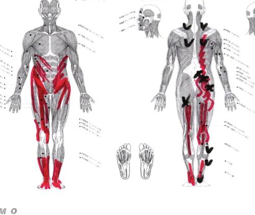 8腰椎すべり症-腰椎ヘルニア-脊椎管狭窄症-右臀部の痛みと足のしびれの治療