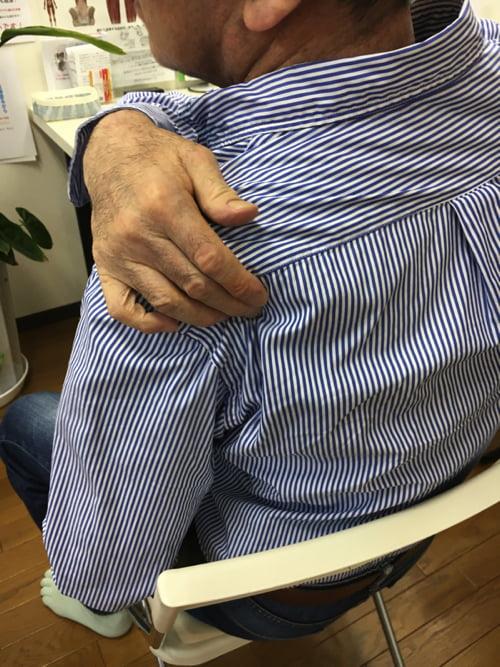 五十肩治療_首の痛み肩の痛みで眠れない症状の治し方6