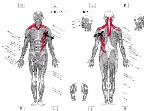 五十肩治療_首の痛み肩の痛みで眠れない症状の治し方8