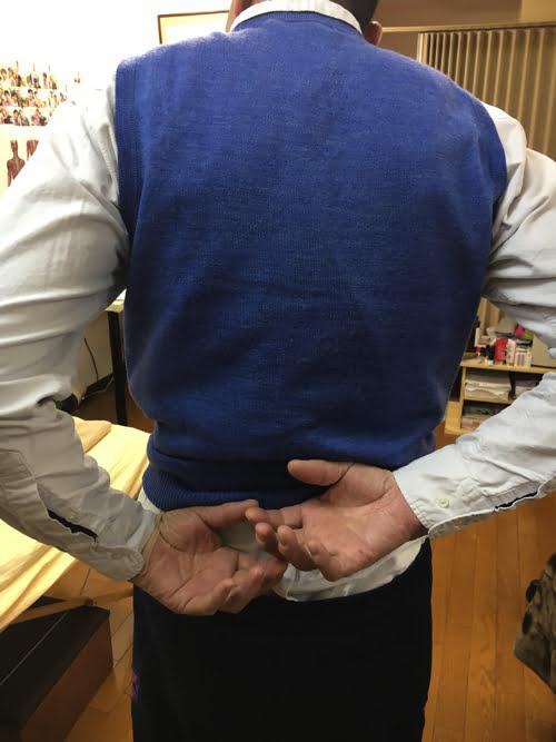 広島で五十肩治療_首の痛み肩の痛みで眠れない症状の治し方1