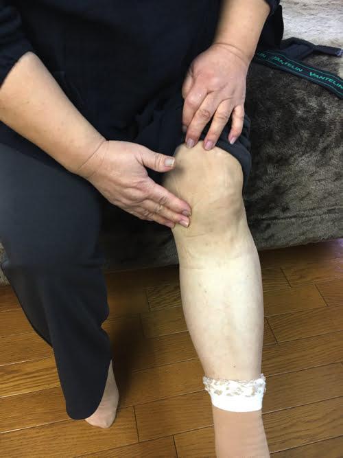 歩くと膝が痛い変形性膝関節症と膝の水たまり治療1