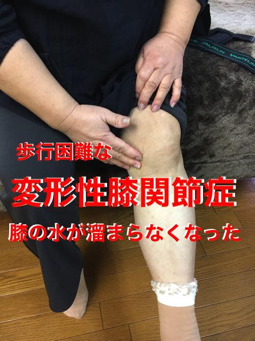 歩くと膝が痛い変形性膝関節症と膝の水たまり治療13