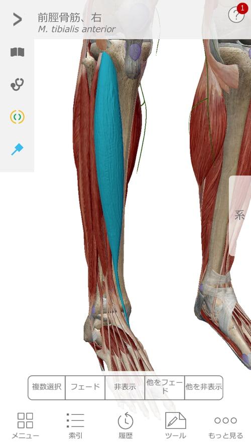 歩くと膝が痛い変形性膝関節症と膝の水たまり治療6
