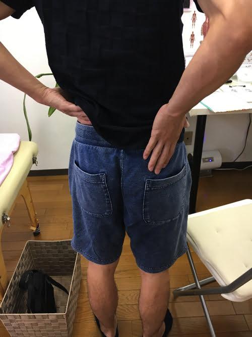 広島_神経ブロック注射が効かないヘルニアの治療4